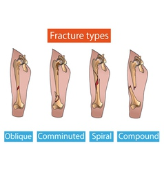 Types of fractures vector