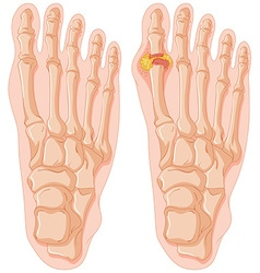 Diagram of gout in human toe vector image