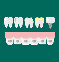 Flat health care dentist tooth implants research vector