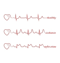 Heart beats various cardiogram set vector