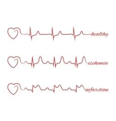 Heart beats various cardiogram set vector