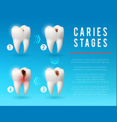 Tooth decay 3d poster of dental caries development vector