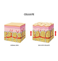 cellulite vector image