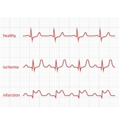 Heart cardiogram charts set healthy heart vector