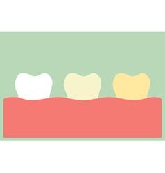 Teeth whitening vector