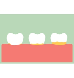 periodontal disease with plaque or tartar vector image