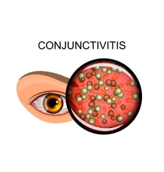 eye suffering from conjunctivitis and styes vector image