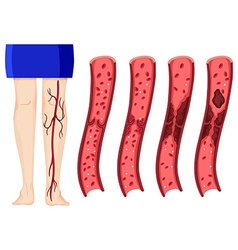Blood clot in human legs vector