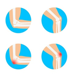 Knee and elbow vector