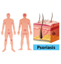 Diagram showing psoriasis in human vector