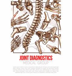 Medical poster for joint diagnostics vector