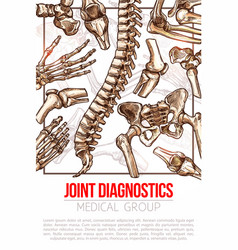 Medical poster for joint diagnostics vector