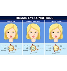 Diagram showing human eye conditions vector