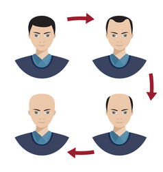 Four stages of hair loss for men vector
