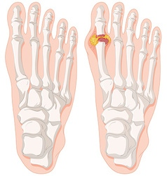 Gout toe in human feet vector
