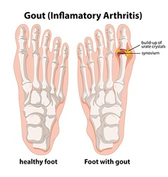 Diagram explanation of gout in human foot vector