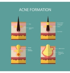 Formation of skin acne or pimple the sebum in the vector