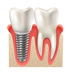 Dental implant tooth set closeup model vector