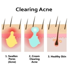 Clearing skin from acne vector