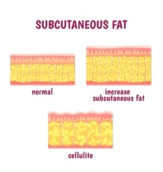 Leather sectional layer of subcutaneous fat vector