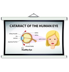 Diagram of cataract in human eye vector image