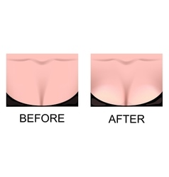 Breast augmentation plastic surgery vector