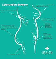 liposuction surgery vector image