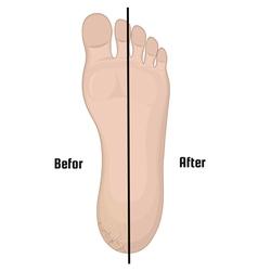 Cracks in the heel vector