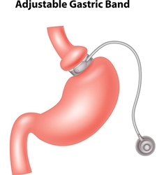 Cartoon of adjustable gastric band vector