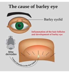 Diseases of the eye barley Causes of barley vector image vector image