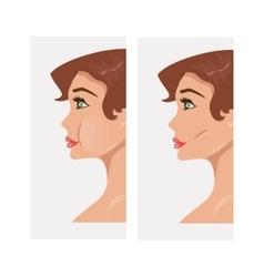 Plastic cheekbones vector