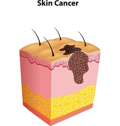 Cartoon of skin cancer vector