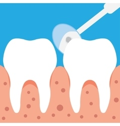 Dental inspection in flat style vector