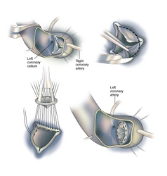 Heart surgery valve replacement vector