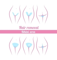 Scheme of hair removal bikini area vector