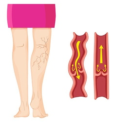 Varicose veins in human leg vector