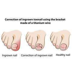 Correction of ingrown nail vector image vector image