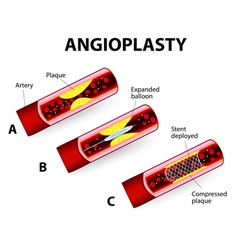 Angioplast vector
