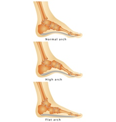 Arch of foot vector