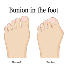 Bunion in the foot vector