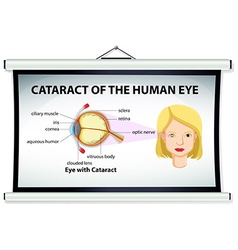 Chart showing cataract of human eye vector image