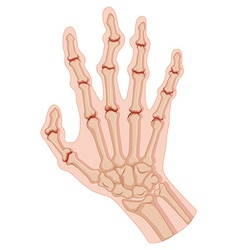 Rheumatoid arthritis in human hand vector