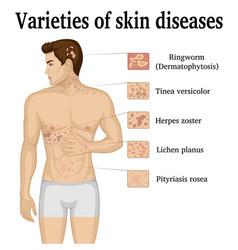 Varieties of skin diseases vector