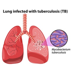 Lung infected with tuberculosis vector