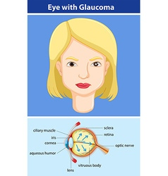 Diagram showing eye with glaucoma vector