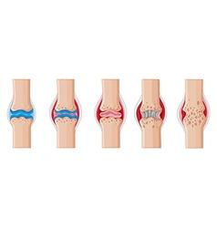 Rheumatoid arthritis in human joints vector