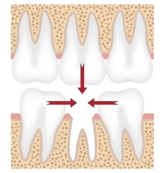 Missing tooth vector