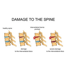 Damage to the spine vector
