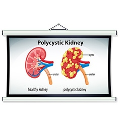 Diagram of polycystic kidney vector image