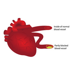 Heart with normal and partly blocked blood vessel vector